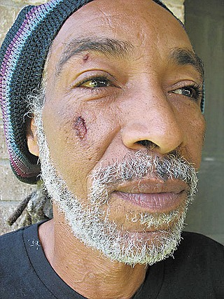 This photo, taken four days after his encounter with Houston Police, shows Harold McMillan with a deep gouge on his face. Other photos show scrapes and bruises on his torso and arms.