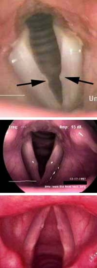 And you thought Internet porn was disgusting: Actual downloaded cases of vocal-cord nodules