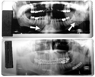 These X-rays of David Prater?s teeth and jaw show his condition following the prison beating (top) and after reconstructive surgery (bottom). Arrows in the top X-ray indicate complete breaks in jaw; the bottom X-ray shows titanium plates and teeth wiring used for reconstruction.